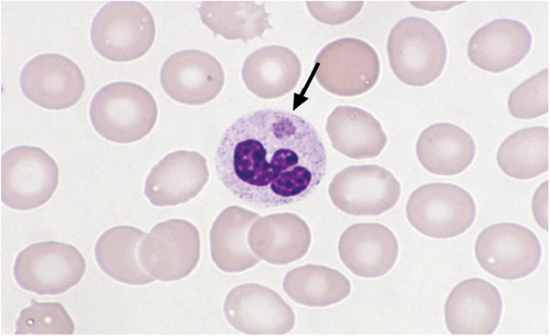 Blood Lab Part 2 Urine Etc Flashcards By Proprofs