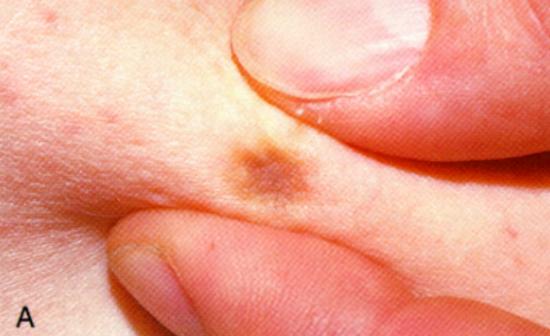 Transmission Fluid Color >> Flashcards Table on Dermatology Flash Cards