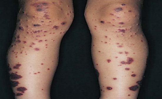 Dermatology Flash Cards Flashcards By Proprofs