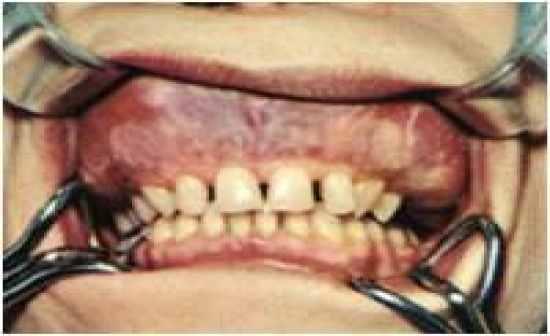 Paget's Disease (Osteitis Deformans) - uncoordinated increase in ...