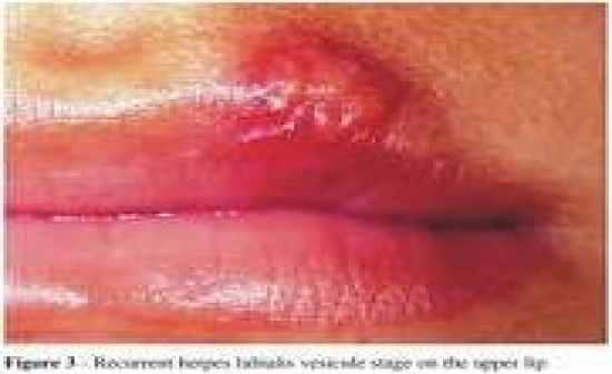 Lip - Wikipedia
