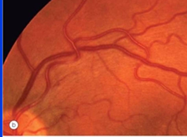 Retinal Vascular Conditions Flashcards By Proprofs