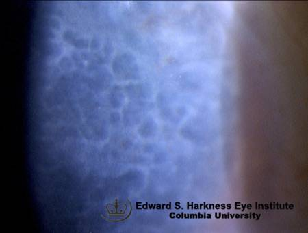 corneal disease flashcards by proprofs