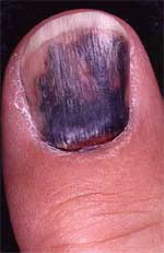 Common Nail Problems, Hangnails, Ingrown Toenails