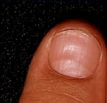 Nail End Coils Upwards Brittle Thin Nails Cause Can Be Iron Deficiency Or Thyroid Issues