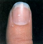 Nail Diseases And Disorders Flashcards By ProProfs