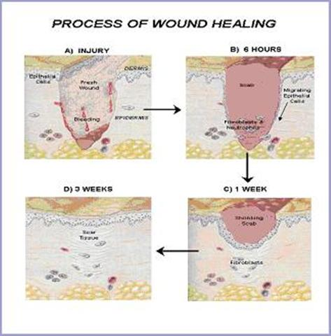 Care of Wound Healing Stages