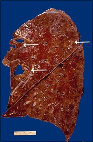 id localized collection of pus liquefactive necrosis with formation of ...