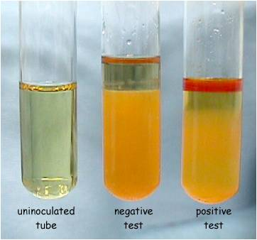 copper sulphate amylase Partial purification and characterization of amylase and starch from elephant foot yam  ammonium sulphate, iodine, copper(ii) sulphate, sodium acetate, di-sodium.