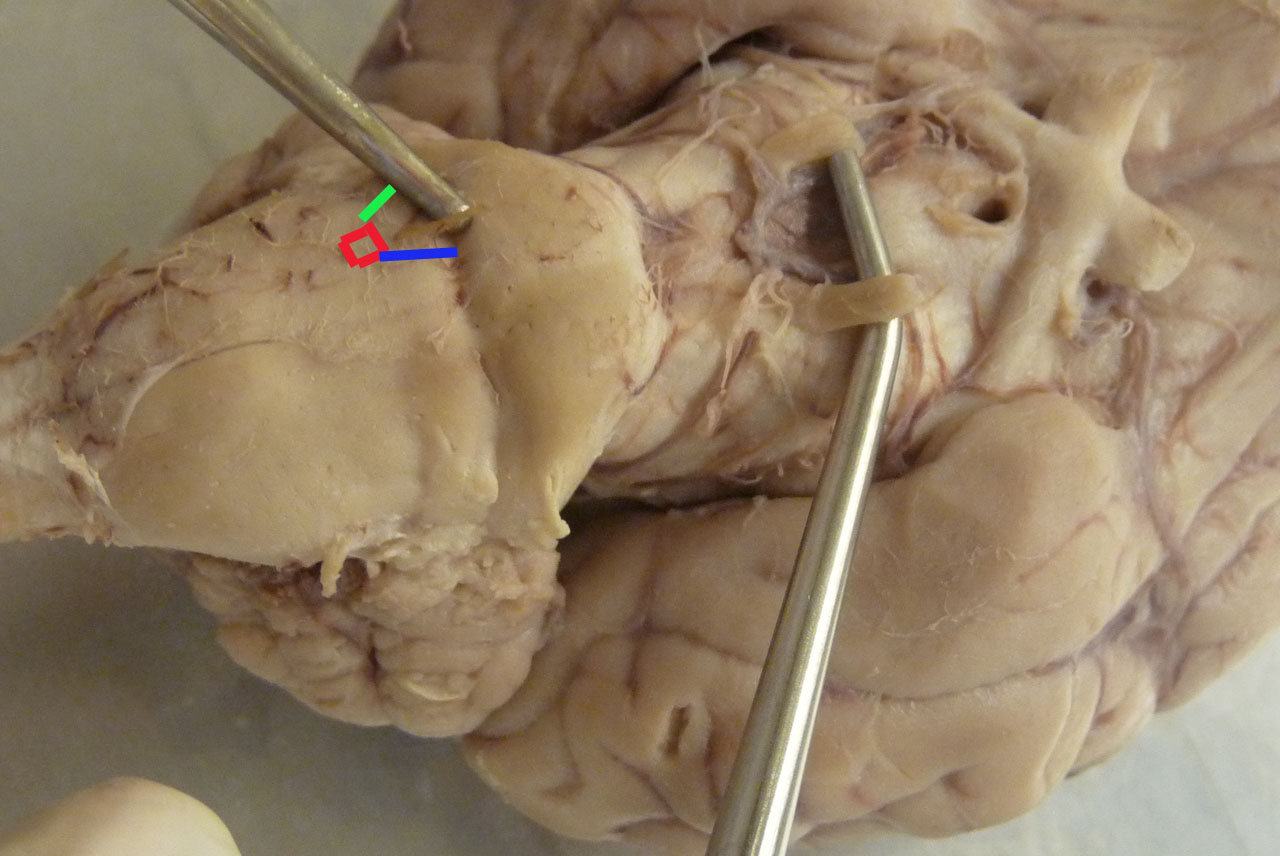 sheep brain picsq flashcards by proprofs