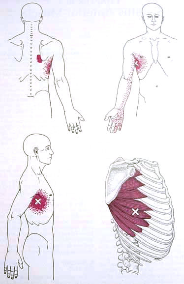 Gluteus Medius Trigger Point