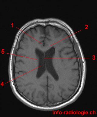 Axial MRI Of Brain Flashcards by ProProfs | 320 x 384 jpeg 19kB