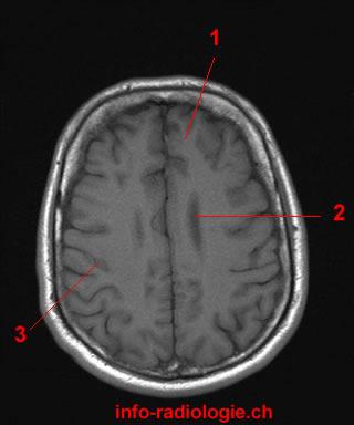 Flashcards Table on Axial Mri Of Brain | 320 x 384 jpeg 16kB
