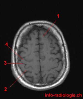 Flashcards Table on Axial Mri Of Brain | 320 x 384 jpeg 14kB