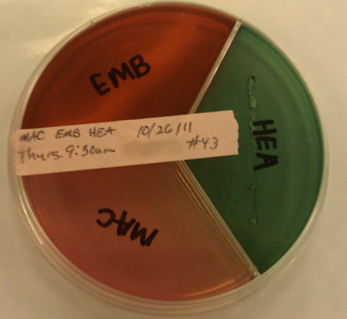 Eosin Methylene Blue Agar (emb)